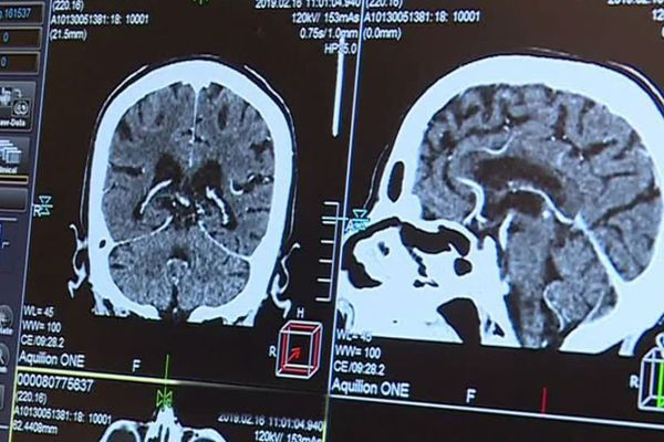 Un scanner avec de l'intelligence artificielle embarquée, c'est une qualité d'image supérieure et moins d'irradiation pour le patient.