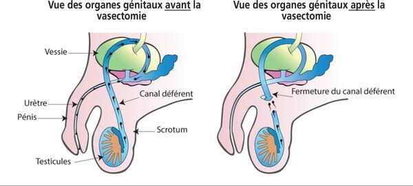 Le principe de la vasectomie