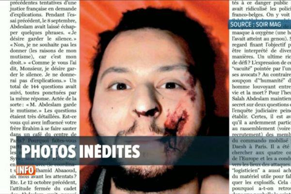 Salah Abdeslam, le visage ensanglanté, après son arrestation à Molenbeek le 18 mars dernier.