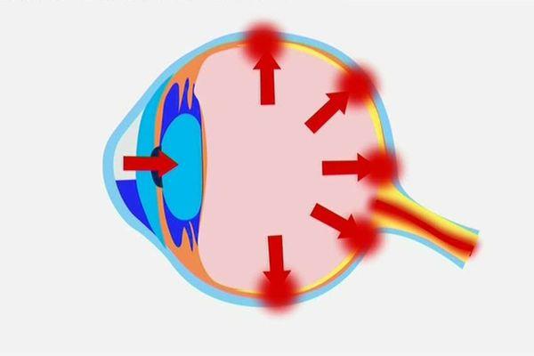 Points de pression intra-oculaire