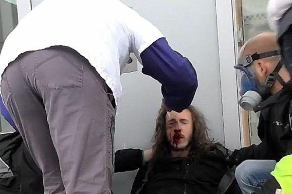 Samedi 9 mars 2019, Thomas manifestait à Lyon quand il aurait été blessé à l'oeil autour de 16h selon ses proches, près de l'avenue Jean Jaurès.