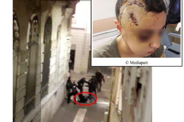 Maria été touchée par un tir de LBD puis frappée au crâne par un groupe de policiers armés de matraques