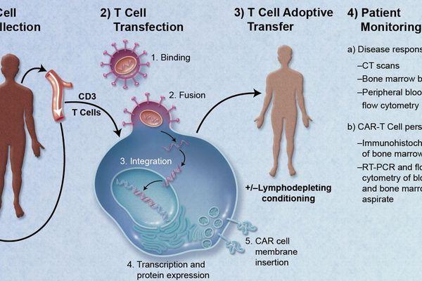 Cette technique médicale consiste à modifier les lymphocytes T du patient pour les éduquer à reconnaître et attaquer les cellules cancéreuses.