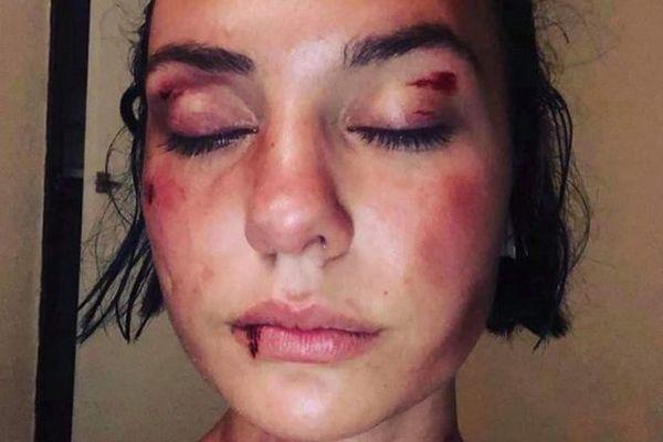 """Mya a décidée de briser le silence. """"Ce n'est pas à nous d'avoir honte ! """" Une jeune femme, tabassée par trois hommes la semaine dernière à Nîmes, a décidé de témoigner."""