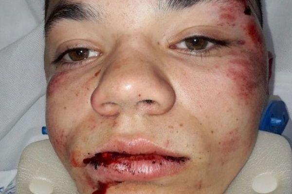 23/01/2020. Quelques heures après les faits, le visage tuméfié du jeune garçon, pris à partie par une vingtaine de jeunes à la sortie de son lycée à Marseille.