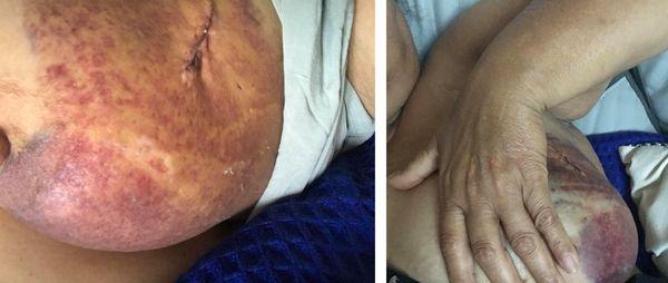 Une cicatrice de plusieurs centimètres sur son sein gauche, Danielle dit vivre une descente aux enfers.