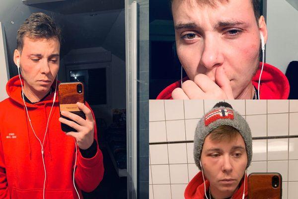 Ce 23 octobre 2019, Maël a de nouveau été agressé à Besançon
