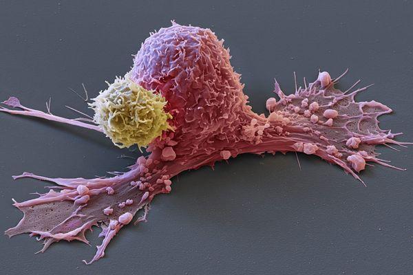 Une cellule cancéreuse (rose) attaquée par une Chimeric antigen Receptor (Car)-T-cell (en jaune).