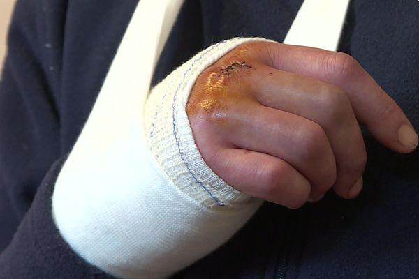 Un homme et sa compagne ont été frappés à de multiples reprises par deux militaires à Sissonne.