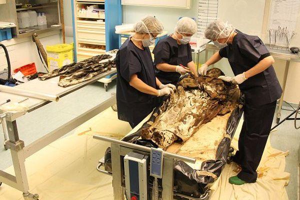 Louise de Quengo sur la table d'autopsie au Chu de Toulouse