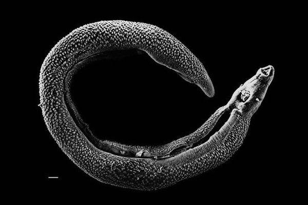 La schistosomiase, ou bilharziose, est une maladie due à l'infestation par un ver parasite nommé schistosome.