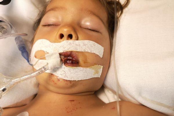 Elisabeth à l'hôpital, après avoir avalé de la soude caustique dans un restaurant de Pornic, en août 2019