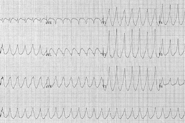 En France, 750 000 personnes sont atteintes d'un trouble du rythme cardiaque multipliant par 5 le risque d'Accident Vasculaire Cérébral (AVC).
