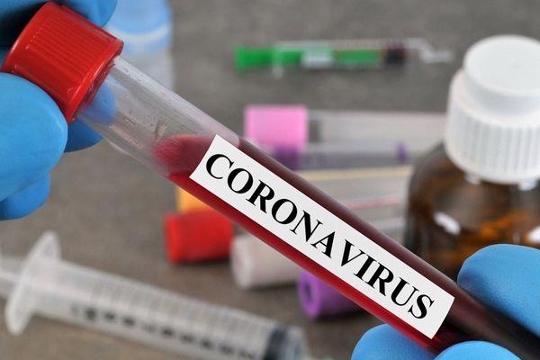 Test dépistage de Coronavirus - archives