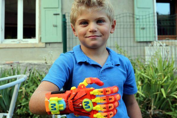 Maxence (6 ans) a été, en août 2016, le premier en France à recevoir une main artificielle fabriquée sur mesure par une imprimante 3D