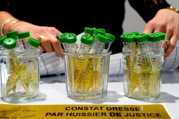 Les analyses d'urine sont envoyées dans un laboratoire en Allemagne.