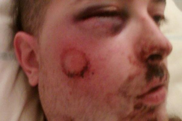 Yann Zoldan a été grièvement blessé au visage