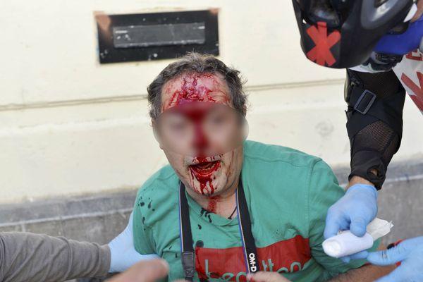 Un blessé samedi à Montpellier