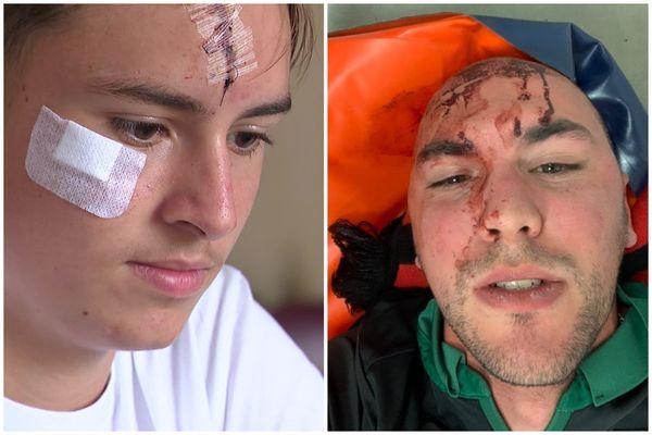À gauche, Clément a reçu une équerre en métal sur le front et a été recousu sur place. À droite, Rémy a perdu connaissance après avoir reçu un siège sur la tête avant d'être emmené à l'hôpital.