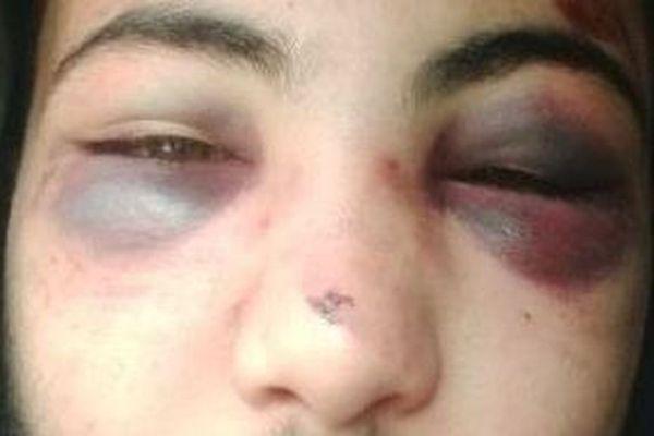 Sofiene, 19 ans, victime de violences policières lors de son interpellation à Koenigshoffen, dans la nuit du 18 au 19 mars dernier.