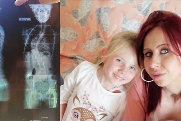 Elena souffre d'une scoliose évolutive idiopathique.