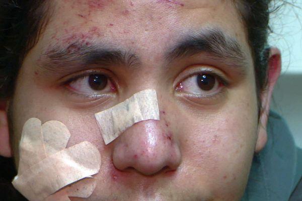 Perpignan - le visage tuméfié, Yanis 17 ans, élève en terminale au lycée Maillol, se dit choqué du contrôle d'identité violent qu'il a subi - janvier 2020.