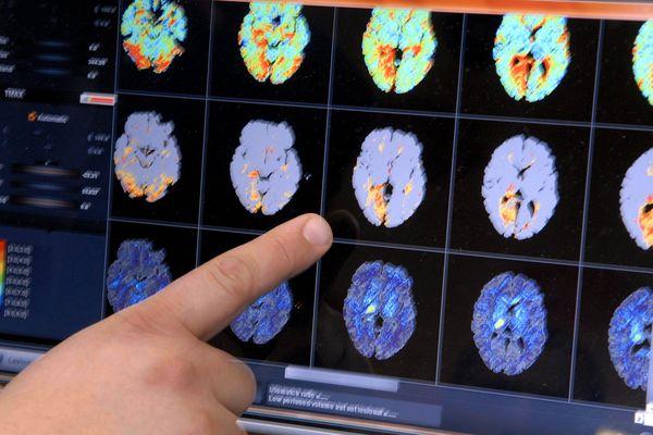 Les attaques cérébrales touchent chaque année 150.000 personnes.