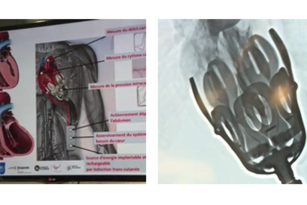 Prototype dispositif d'assistance cardiaque biocompatible, le  12 avril  2021 à  l'École de chirurgie Nancy