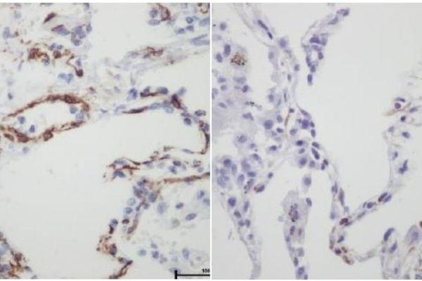 A gauche, le poumon est normal. Les péricytes (en marron) sont très présents dans les capillaires du poumon, et diminuent chez un patient infecté par le coronavirus.
