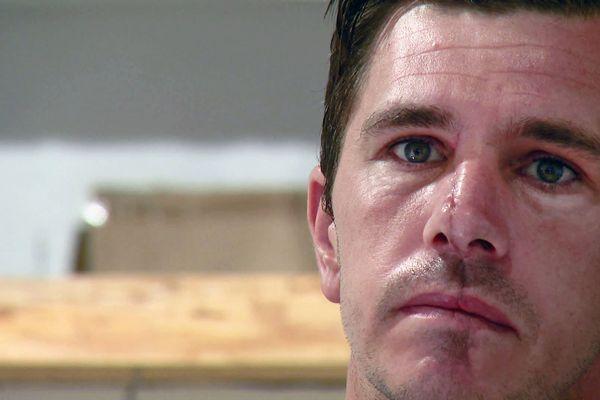 Un commerçant antibois défiguré après un terrible accident