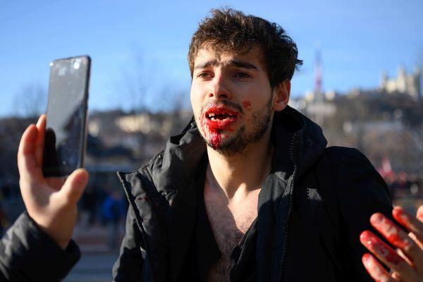 Le jeune homme explique avoir eu 9 dents cassées après avoir subi des brutalités policières, lors de la manifestation de mardi 10 décembre.