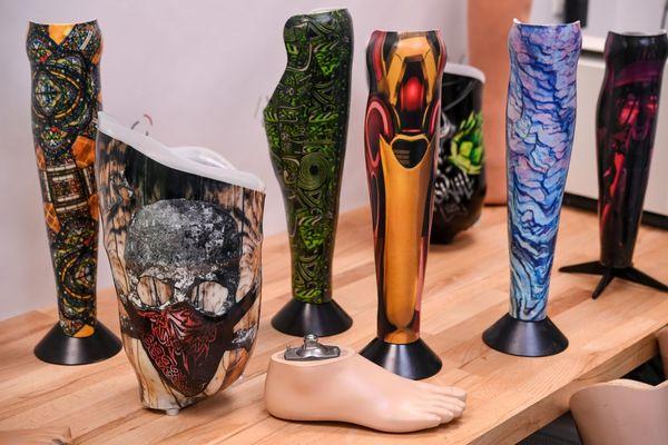 Exemples de prothèses colorées fabriquées par l'entreprise Algo Orthopédie, à Briec