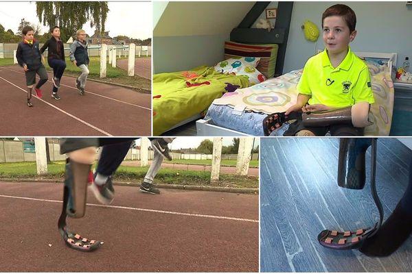 Alexandre, 9 ans, peut enfin courir comme les autres enfants.