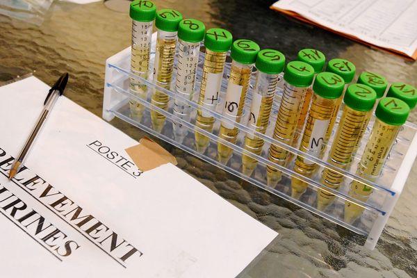 Des analyses en laboratoire peuvent détecter la présence de glyphosate dans les urines. Photo d'illustration.