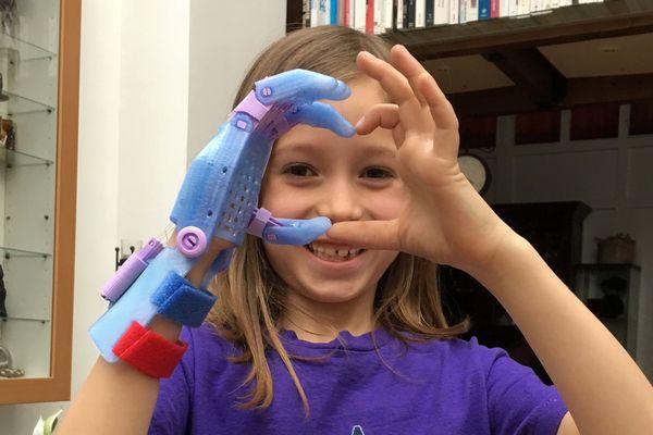 Un réseau de bénévoles réalise ces prothèses de manière bénévole, au sein de l'association Enable.
