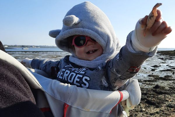 Maël, deux ans, est atteint d'épidermolyse bulleuse, une maladie génétique de la peau