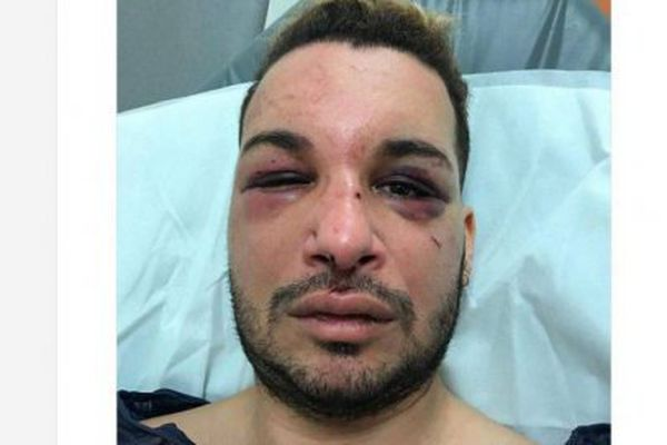 La victime sur son lit d'hôpital