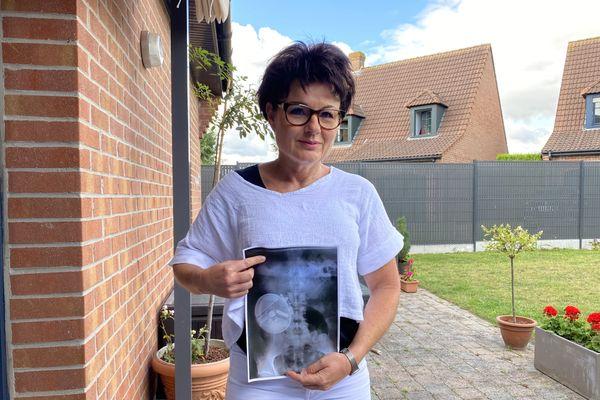 Diabétique de type 1, Anne Durieux a une pompe à inusline implantée entre sa peau et son abdomen.