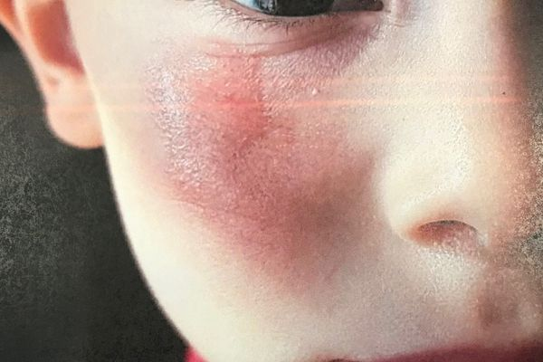 Roquevaire : un instituteur frotte la joue d'un enfant de 4 ans avec une éponge, les parents portent plainte