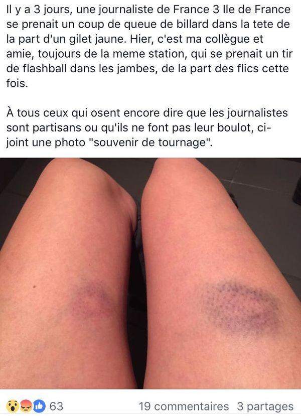 Une photos prise par la journaliste touchée par un tir de Flash-ball.