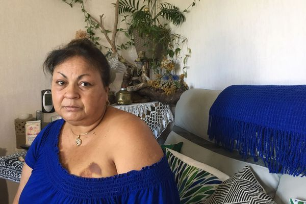 Pendant sa biopsie mammaire, elle a eu très mal puis a perdu connaissance. Elle s'est réveillée 10 heures plus tard avec une longues cicatrice sur le sein.