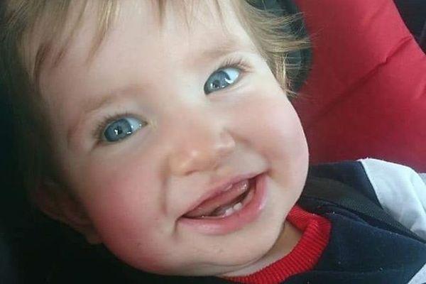 Chris Olivier, 10 mois, a été grièvement brûlé par l'huile d'une friteuse