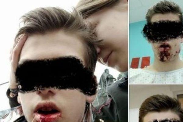 Lucas, 16 ans, gravement blessé place Bellecour samedi 7 mars lors des heurts entre CRS et gilets jaunes. Ses parents ont déposé plainte.