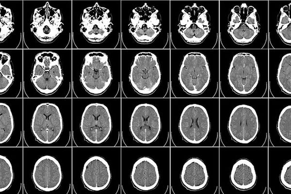 Le cerveau sous toutes les coutures, grâce à l'imagerie médicale