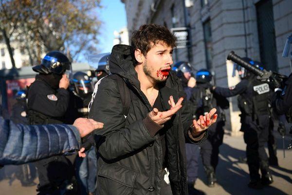 """Le jeune Arthur N., 23 ans, dit être victime d'une """"agression gratuite"""" à Lyon pendant la manifestation pour les retraites le 10 décembre 2019. Photos et vidéos prises par des témoins de la scène ont permis de mettre en cause deux policiers."""
