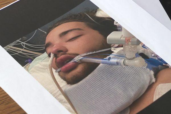 Lorenzo, 19 ans, est devenu tétraplégique suite à une violente agression dans la nuit du 23 au 24 août 2020 à Lattes (Hérault).