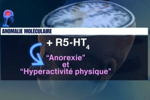 Anorexie et hyperactivité physique seraient dues à une anomalie cérébrale.