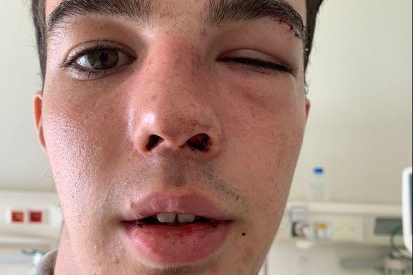 Axel Brunel, 16 ans, a eu le nez et le plateau orbital fracturés le 6 septembre à Corte