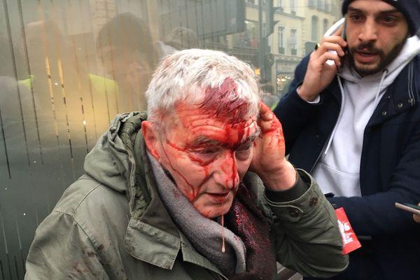 Un manifestant blessé