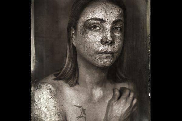 Le photographe Clément Marion a travaillé avec les victimes qui portent sur elles les cicatrices de graves brulures.